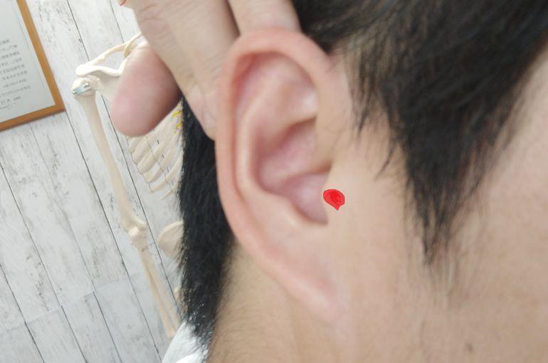 が 痛い 耳 の ふち